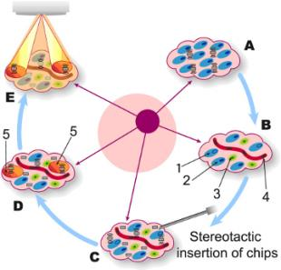 Implantable Microsystems for Personalised Anti-Cancer Therapy